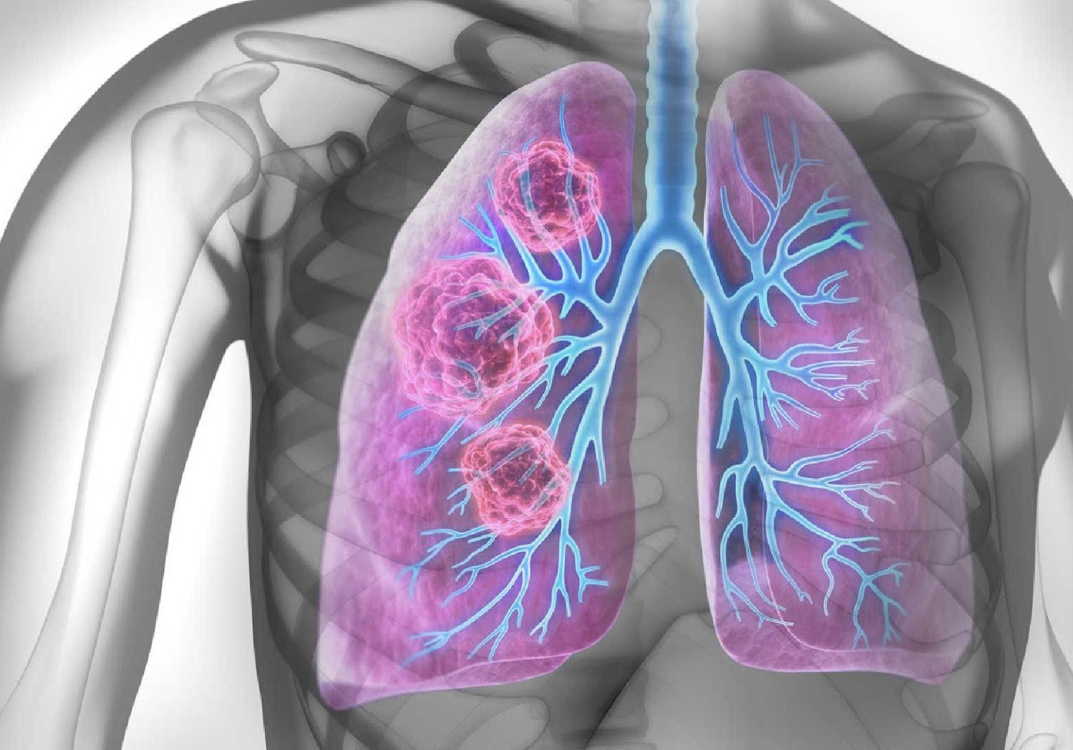 lung cancer face masks